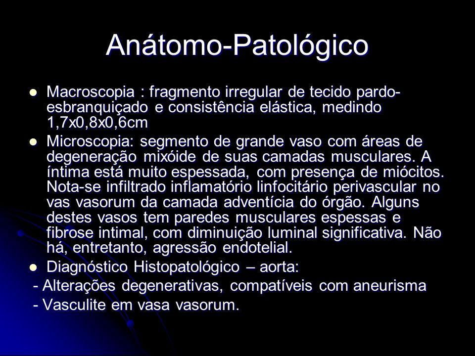 Anátomo-Patológico Macroscopia : fragmento irregular de tecido pardo- esbranquiçado e consistência elástica, medindo 1,7x0,8x0,6cm Macroscopia : fragmento irregular de tecido pardo- esbranquiçado e consistência elástica, medindo 1,7x0,8x0,6cm Microscopia: segmento de grande vaso com áreas de degeneração mixóide de suas camadas musculares.