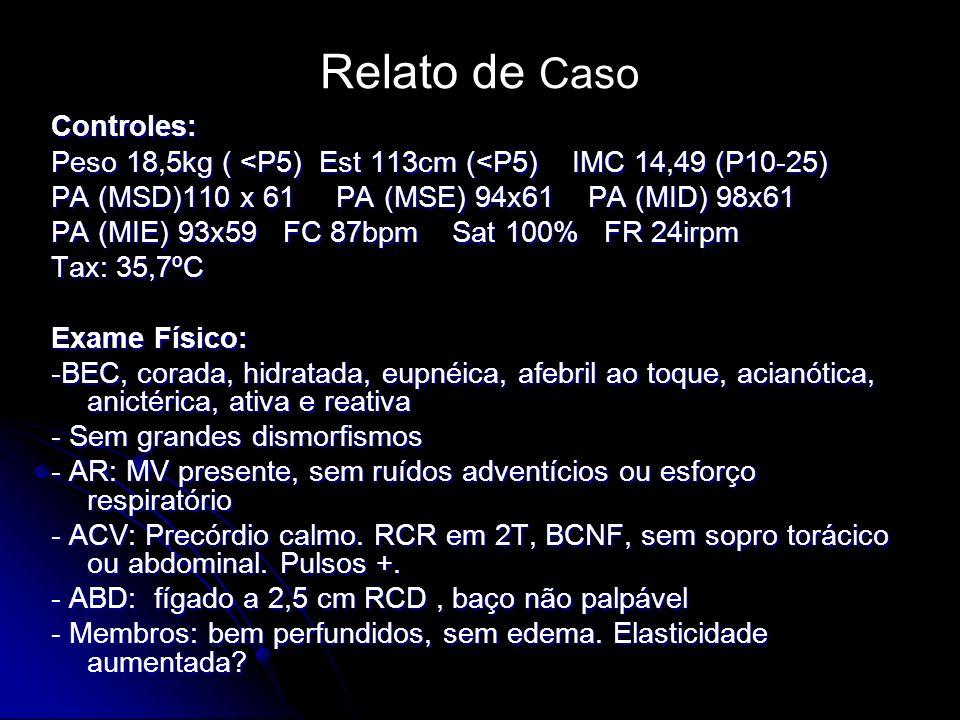 Relato de Caso Controles: Peso 18,5kg ( <P5) Est 113cm (<P5) IMC 14,49 (P10-25) PA (MSD)110 x 61 PA (MSE) 94x61 PA (MID) 98x61 PA (MIE) 93x59 FC 87bpm Sat 100% FR 24irpm Tax: 35,7ºC Exame Físico: -BEC, corada, hidratada, eupnéica, afebril ao toque, acianótica, anictérica, ativa e reativa - Sem grandes dismorfismos - AR: MV presente, sem ruídos adventícios ou esforço respiratório - ACV: Precórdio calmo.