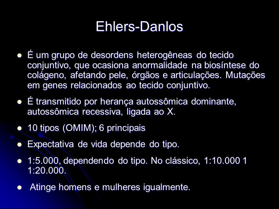 Ehlers-Danlos É um grupo de desordens heterogêneas do tecido conjuntivo, que ocasiona anormalidade na biosíntese do colágeno, afetando pele, órgãos e articulações.