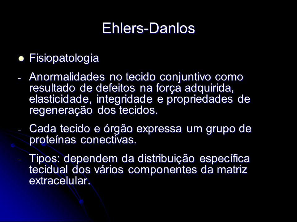 Ehlers-Danlos Fisiopatologia Fisiopatologia - Anormalidades no tecido conjuntivo como resultado de defeitos na força adquirida, elasticidade, integridade e propriedades de regeneração dos tecidos.