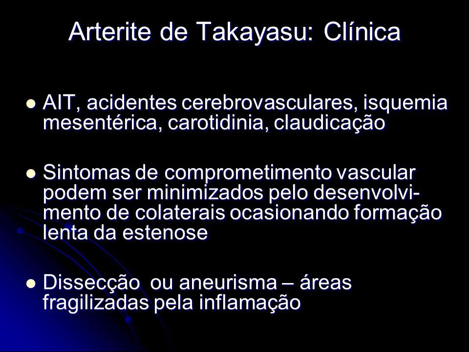 Arterite de Takayasu: Clínica AIT, acidentes cerebrovasculares, isquemia mesentérica, carotidinia, claudicação AIT, acidentes cerebrovasculares, isquemia mesentérica, carotidinia, claudicação Sintomas de comprometimento vascular podem ser minimizados pelo desenvolvi- mento de colaterais ocasionando formação lenta da estenose Sintomas de comprometimento vascular podem ser minimizados pelo desenvolvi- mento de colaterais ocasionando formação lenta da estenose Dissecção ou aneurisma – áreas fragilizadas pela inflamação Dissecção ou aneurisma – áreas fragilizadas pela inflamação
