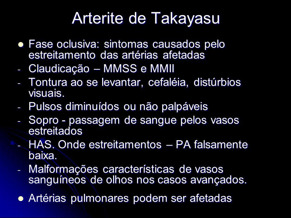 Arterite de Takayasu Fase oclusiva: sintomas causados pelo estreitamento das artérias afetadas Fase oclusiva: sintomas causados pelo estreitamento das artérias afetadas - Claudicação – MMSS e MMII - Tontura ao se levantar, cefaléia, distúrbios visuais.