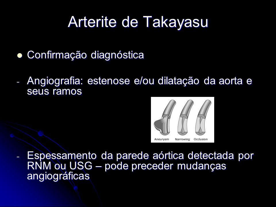 Arterite de Takayasu Confirmação diagnóstica Confirmação diagnóstica - Angiografia: estenose e/ou dilatação da aorta e seus ramos - Espessamento da parede aórtica detectada por RNM ou USG – pode preceder mudanças angiográficas