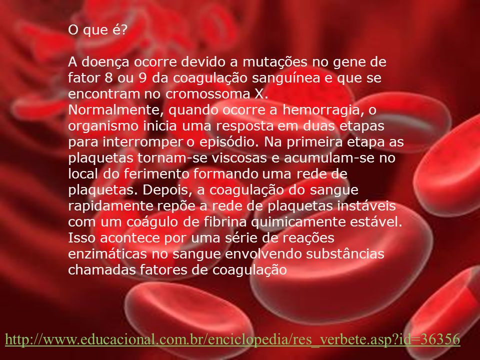 Tratamento O tratamento da hemofilia evoluiu muito e, basicamente, consiste na reposição do fator anti-hemofílico. Paciente com hemofilia A recebe a m