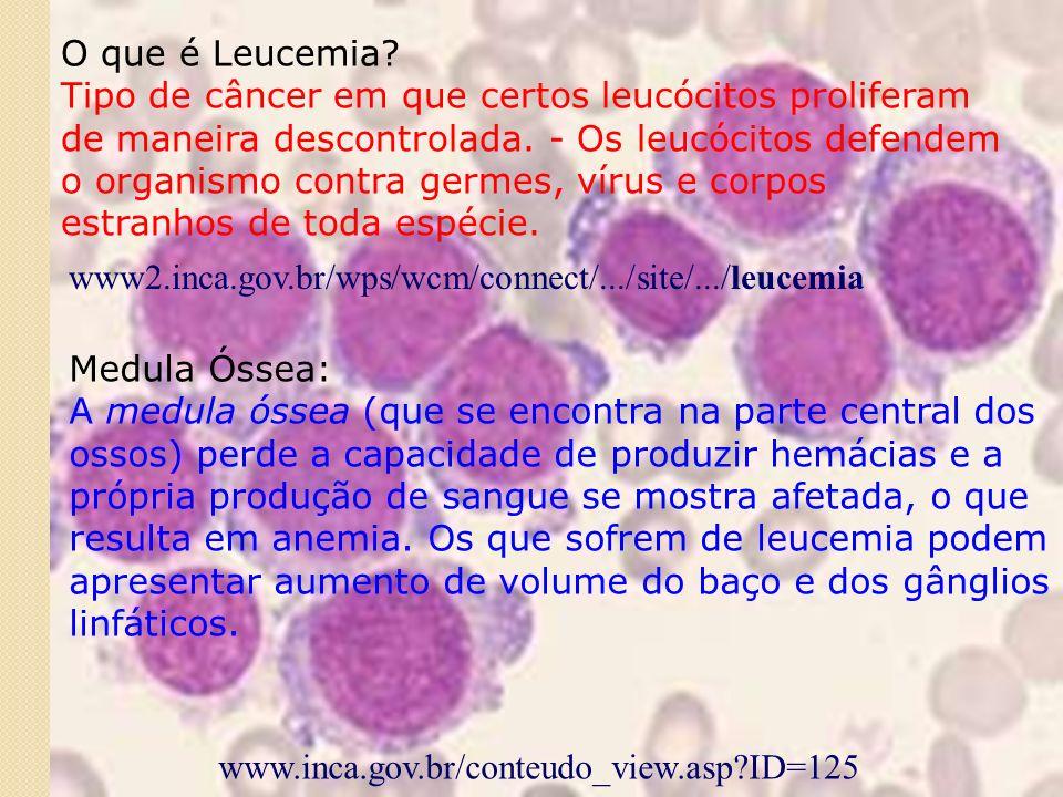 O que é Leucemia.Tipo de câncer em que certos leucócitos proliferam de maneira descontrolada.