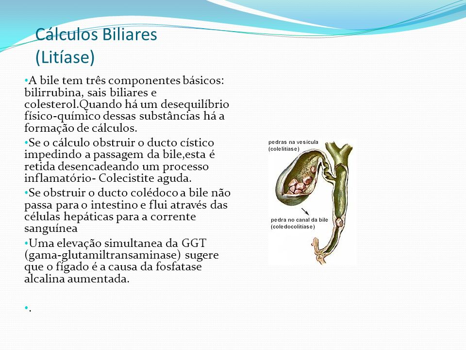 Cálculos Biliares (Litíase) A bile tem três componentes básicos: bilirrubina, sais biliares e colesterol.Quando há um desequilíbrio físico-químico des