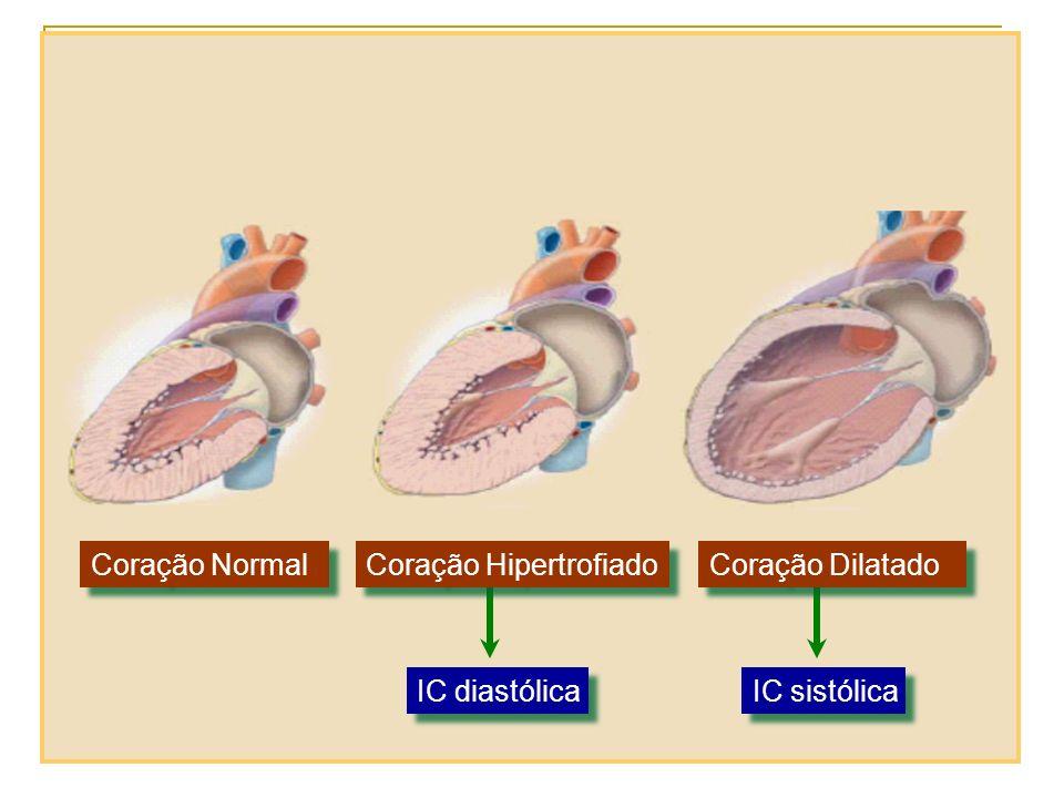 IC diastólica IC sistólica Coração Normal Coração Hipertrofiado Coração Dilatado
