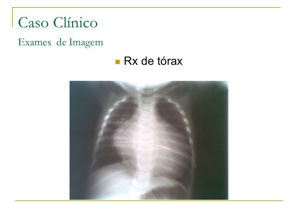 Caso Clínico Exames de Imagem Rx de tórax