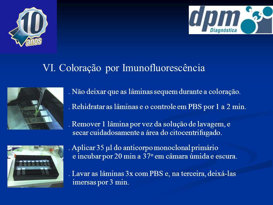 VI. Coloração por Imunofluorescência. Não deixar que as lâminas sequem durante a coloração.. Rehidratar as lâminas e o controle em PBS por 1 a 2 min..