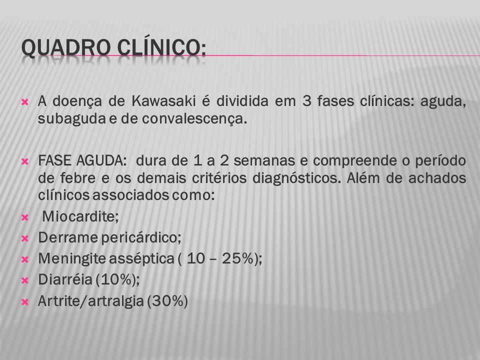 A doença de Kawasaki é dividida em 3 fases clínicas: aguda, subaguda e de convalescença.