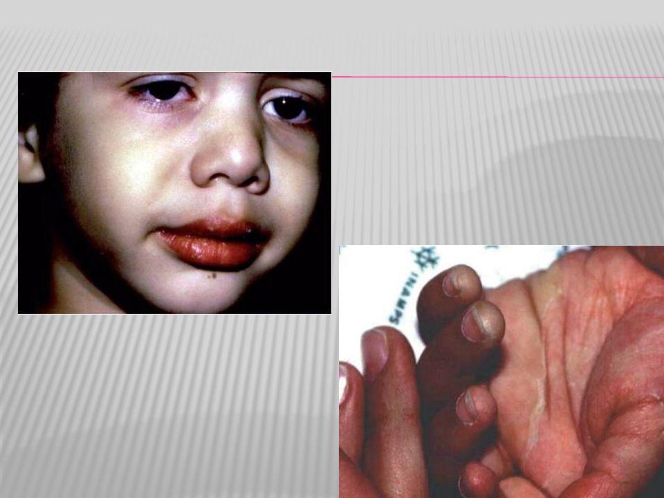 O rash cutâneo é não específico, polimórfico, não pruriginoso, normalmente aparece até o quinto dia de febre.