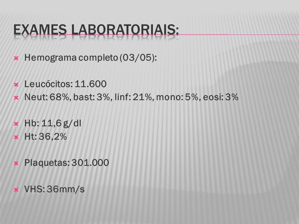 Hemograma completo (03/05): Leucócitos: 11.600 Neut: 68%, bast: 3%, linf: 21%, mono: 5%, eosi: 3% Hb: 11,6 g/dl Ht: 36,2% Plaquetas: 301.000 VHS: 36mm/s