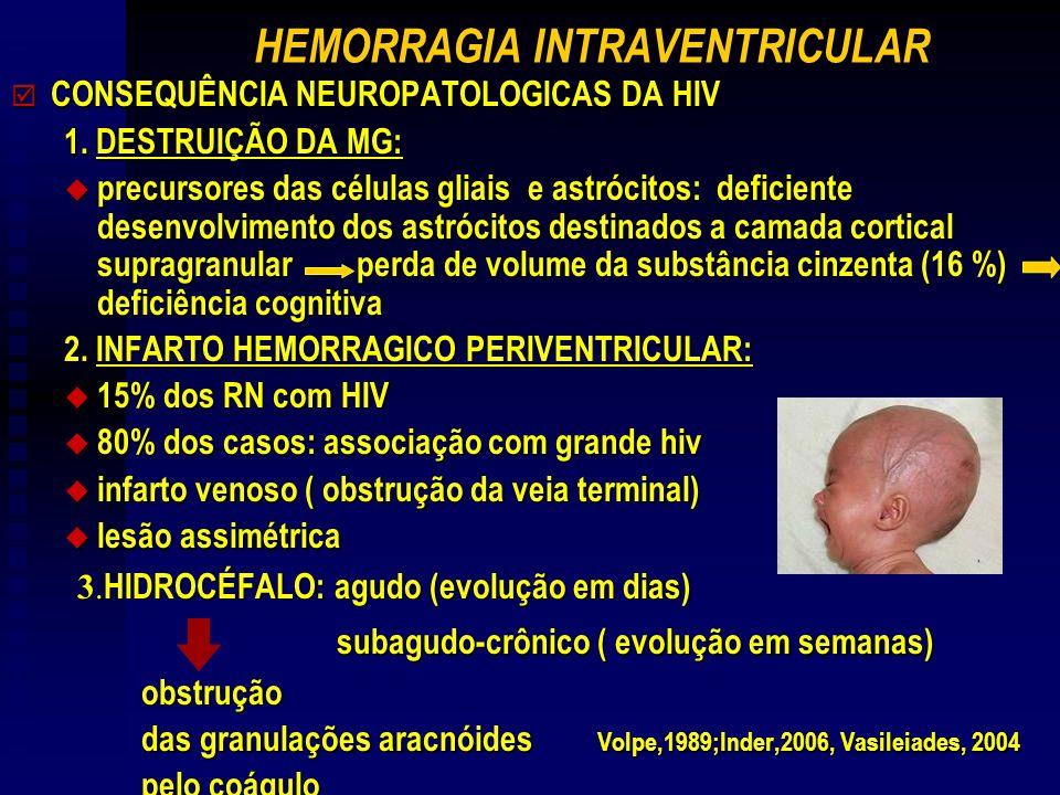 HEMORRAGIA INTRAVENTRICULAR þ CONSEQUÊNCIA NEUROPATOLOGICAS DA HIV 1. DESTRUIÇÃO DA MG: u precursores das células gliais e astrócitos: deficiente dese