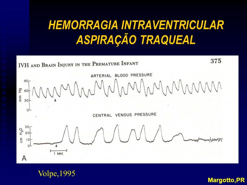 HEMORRAGIA INTRAVENTRICULAR ASPIRAÇÃO TRAQUEAL Margotto,PR Volpe,1995