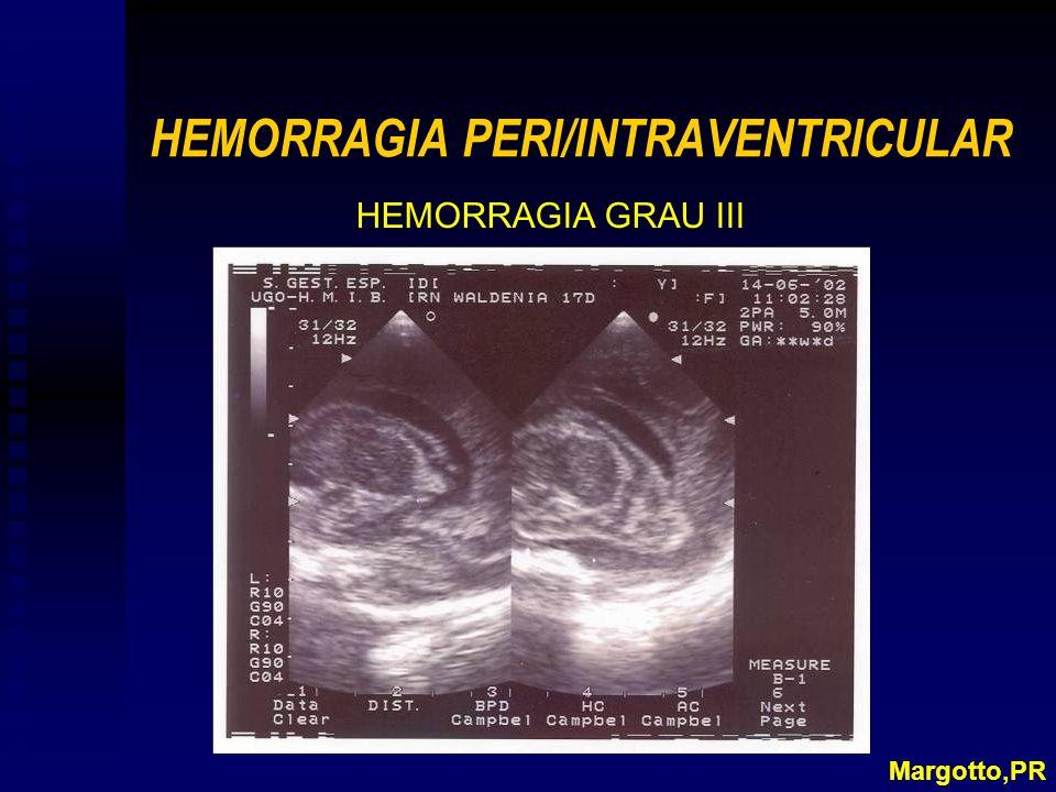 HEMORRAGIA PERI/INTRAVENTRICULAR HEMORRAGIA GRAU III Margotto,PR