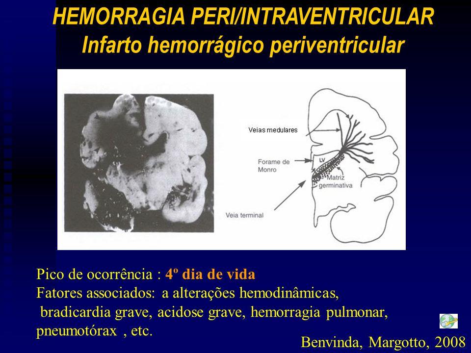 Pico de ocorrência : 4º dia de vida Fatores associados: a alterações hemodinâmicas, bradicardia grave, acidose grave, hemorragia pulmonar, pneumotórax