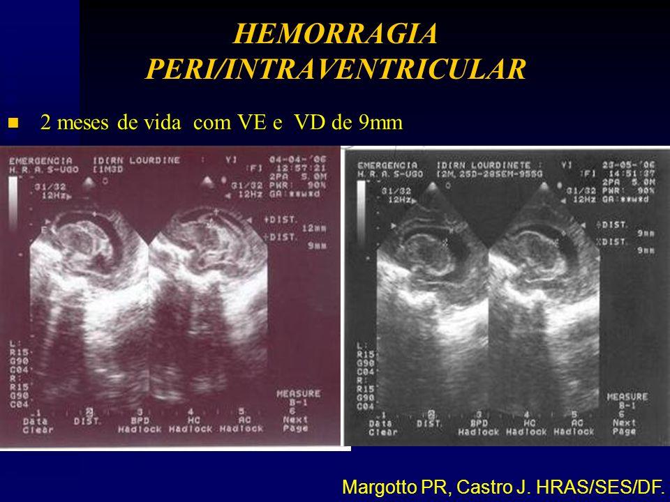 n 2 meses de vida com VE e VD de 9mm Margotto PR, Castro J. HRAS/SES/DF. HEMORRAGIA PERI/INTRAVENTRICULAR