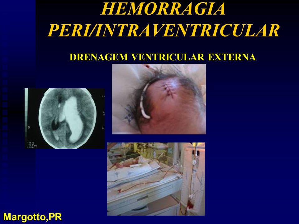 HEMORRAGIA PERI/INTRAVENTRICULAR DRENAGEM VENTRICULAR EXTERNA Margotto,PR