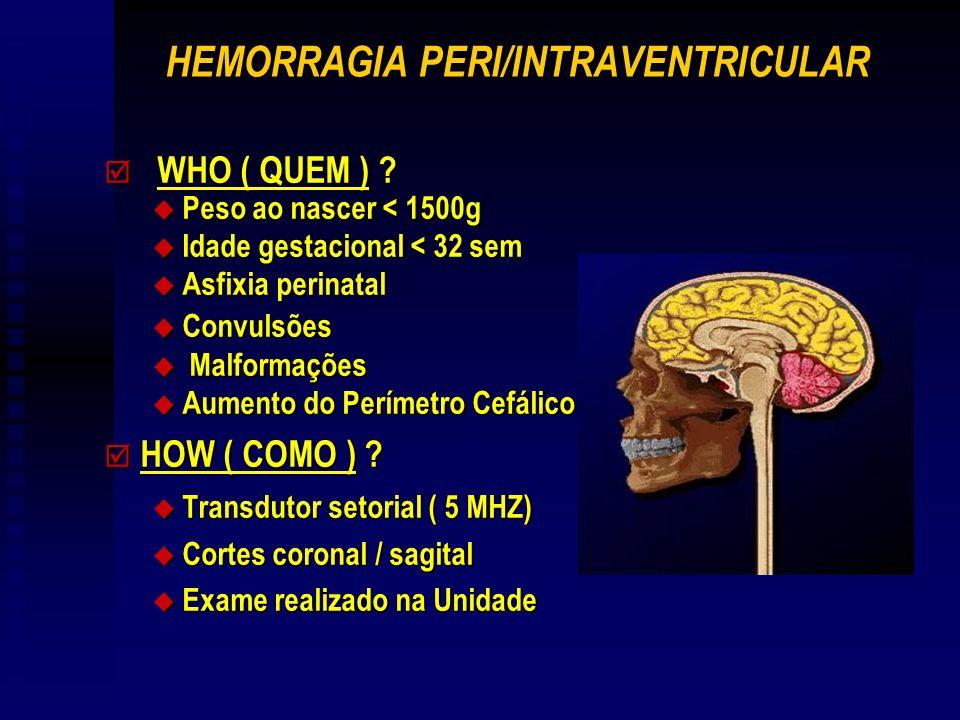 HEMORRAGIA PERI/INTRAVENTRICULAR þ WHO ( QUEM ) ? u Peso ao nascer < 1500g u Idade gestacional < 32 sem u Asfixia perinatal u Convulsões u Malformaçõe