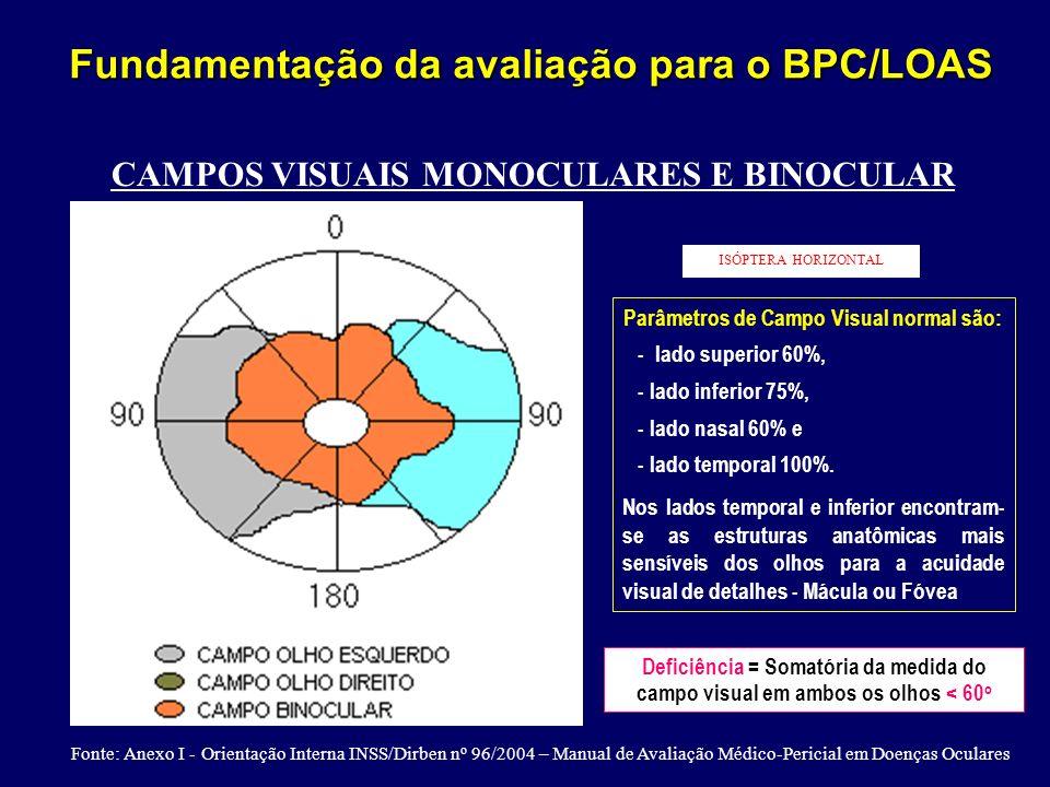 CAMPOS VISUAIS MONOCULARES E BINOCULAR ISÓPTERA HORIZONTAL Parâmetros de Campo Visual normal são: - lado superior 60%, - lado inferior 75%, - lado nas