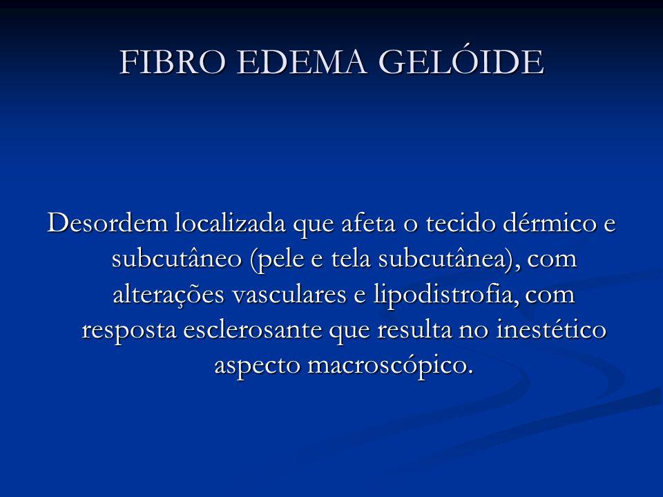 FIBRO EDEMA GELÓIDE Desordem localizada que afeta o tecido dérmico e subcutâneo (pele e tela subcutânea), com alterações vasculares e lipodistrofia, c