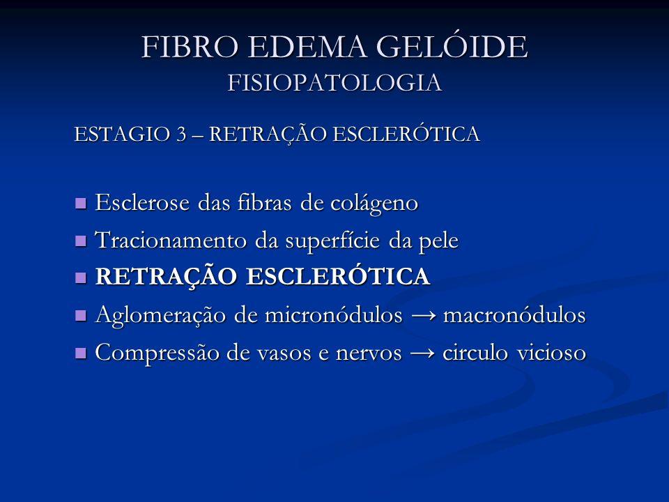 FIBRO EDEMA GELÓIDE FISIOPATOLOGIA ESTAGIO 3 – RETRAÇÃO ESCLERÓTICA Esclerose das fibras de colágeno Esclerose das fibras de colágeno Tracionamento da