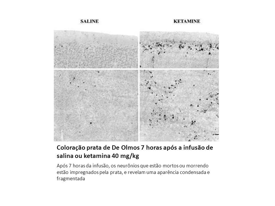 Doppler ultrasound assessment of the effects of ketamine on neonatal cerebral circulation ketamina mantém a estabilidade hemodinâmica com mínimos efeitos sobre o fluxo sanguíneo cerebral em neonatos em ventilação mecânica The effects of a single dose of 5 mg.kg-1 of ketamine administered intravenously to 10 critically ill preterm infants prior to epicutaneo-caval catheterization were analyzed using pulsed-wave Doppler ultrasound.