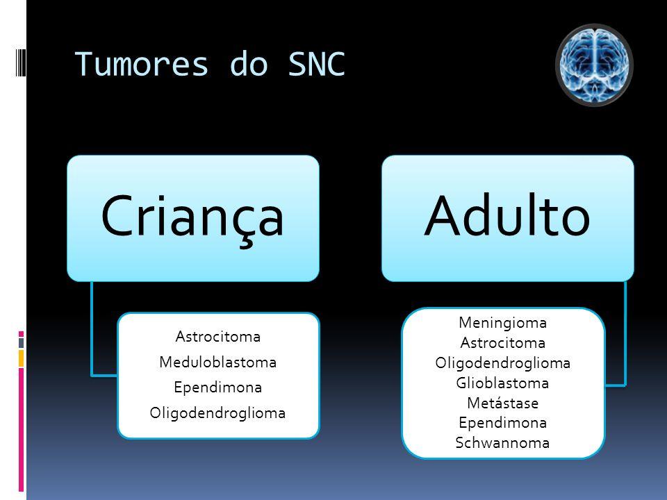 Tumores do SNC Criança Astrocitoma Meduloblastoma Ependimona Oligodendroglioma Adulto Meningioma Astrocitoma Oligodendroglioma Glioblastoma Metástase