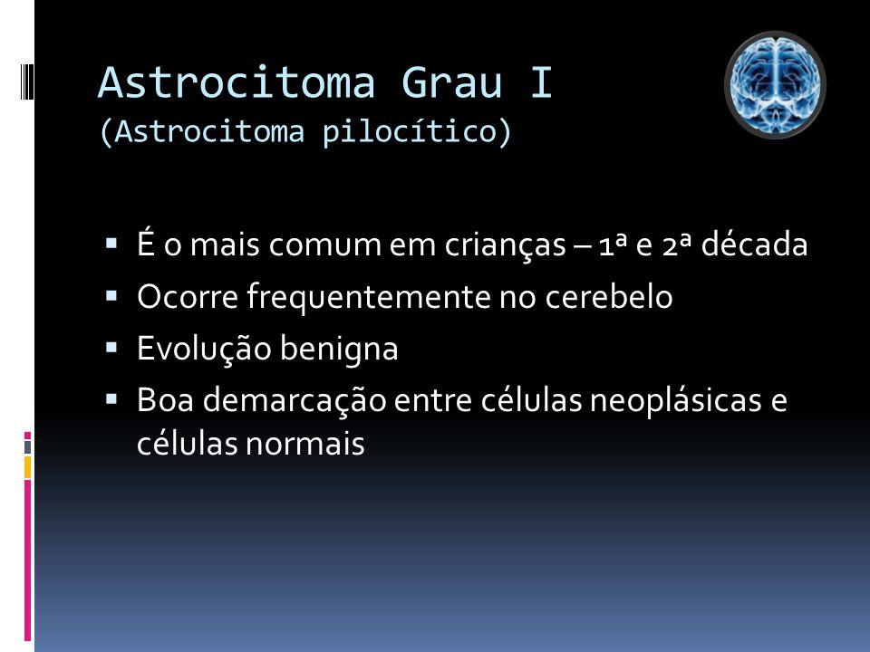 Astrocitoma Grau I (Astrocitoma pilocítico) É o mais comum em crianças – 1ª e 2ª década Ocorre frequentemente no cerebelo Evolução benigna Boa demarca