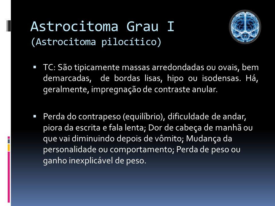 Astrocitoma Grau I (Astrocitoma pilocítico) TC: São tipicamente massas arredondadas ou ovais, bem demarcadas, de bordas lisas, hipo ou isodensas. Há,