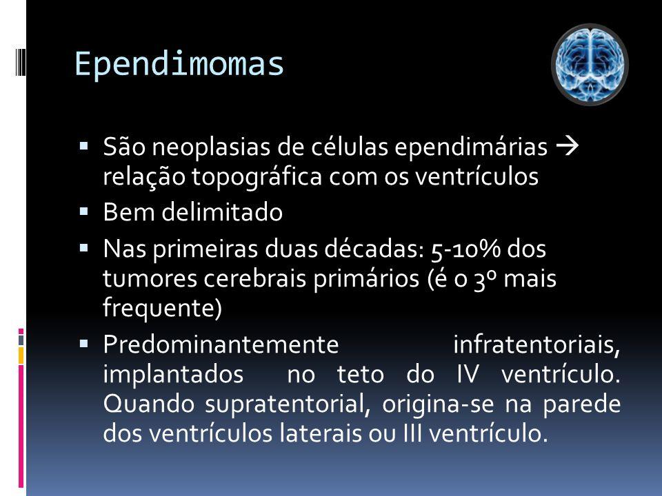 Ependimomas São neoplasias de células ependimárias relação topográfica com os ventrículos Bem delimitado Nas primeiras duas décadas: 5-10% dos tumores