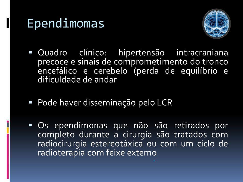 Ependimomas Quadro clínico: hipertensão intracraniana precoce e sinais de comprometimento do tronco encefálico e cerebelo (perda de equilíbrio e dific