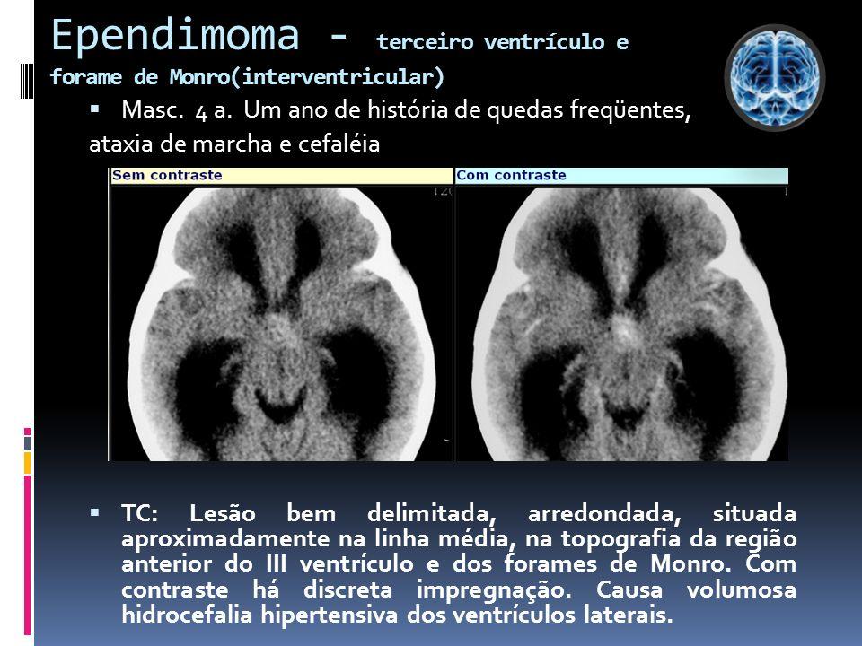 Ependimoma - terceiro ventrículo e forame de Monro(interventricular) Masc. 4 a. Um ano de história de quedas freqüentes, ataxia de marcha e cefaléia T