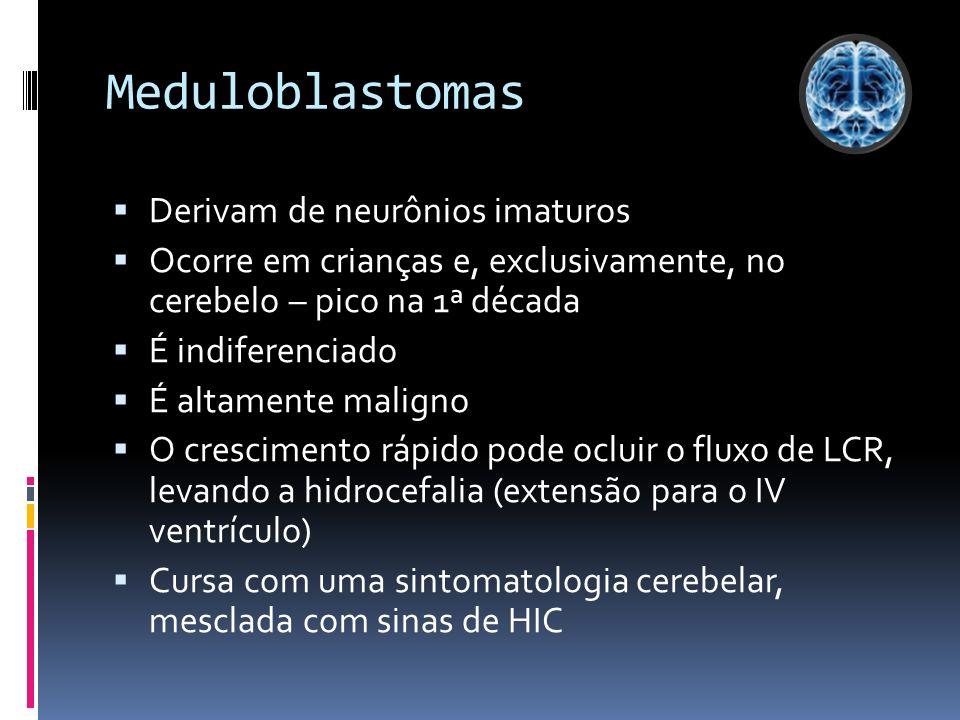 Meduloblastomas Derivam de neurônios imaturos Ocorre em crianças e, exclusivamente, no cerebelo – pico na 1ª década É indiferenciado É altamente malig