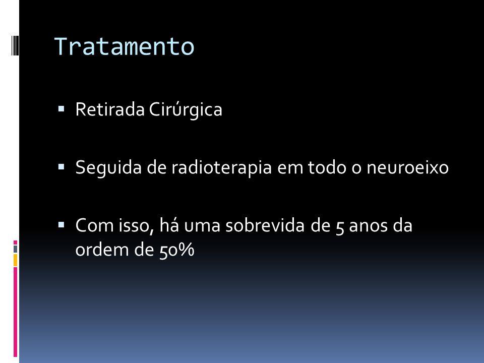 Tratamento Retirada Cirúrgica Seguida de radioterapia em todo o neuroeixo Com isso, há uma sobrevida de 5 anos da ordem de 50%