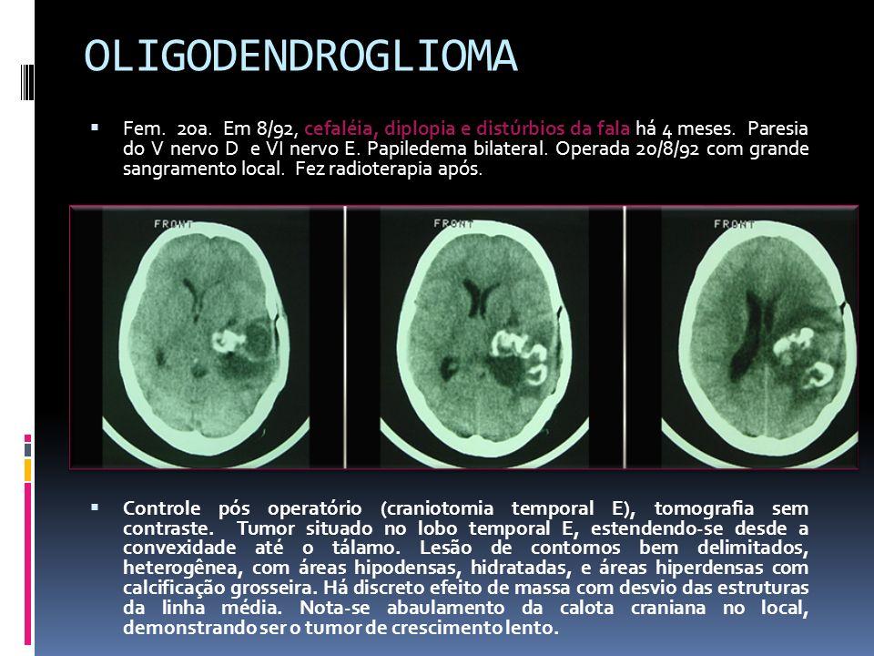 OLIGODENDROGLIOMA Fem. 20a. Em 8/92, cefaléia, diplopia e distúrbios da fala há 4 meses. Paresia do V nervo D e VI nervo E. Papiledema bilateral. Oper