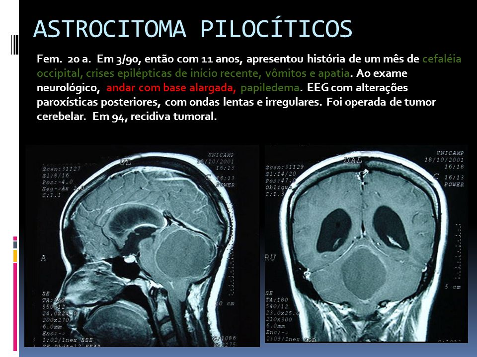 ASTROCITOMA PILOCÍTICOS Fem. 20 a. Em 3/90, então com 11 anos, apresentou história de um mês de cefaléia occipital, crises epilépticas de início recen