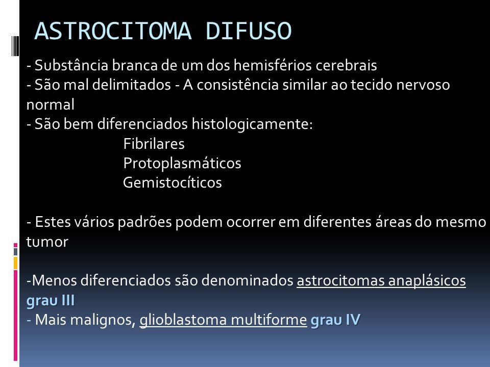 ASTROCITOMA DIFUSO - Substância branca de um dos hemisférios cerebrais - São mal delimitados - A consistência similar ao tecido nervoso normal - São b