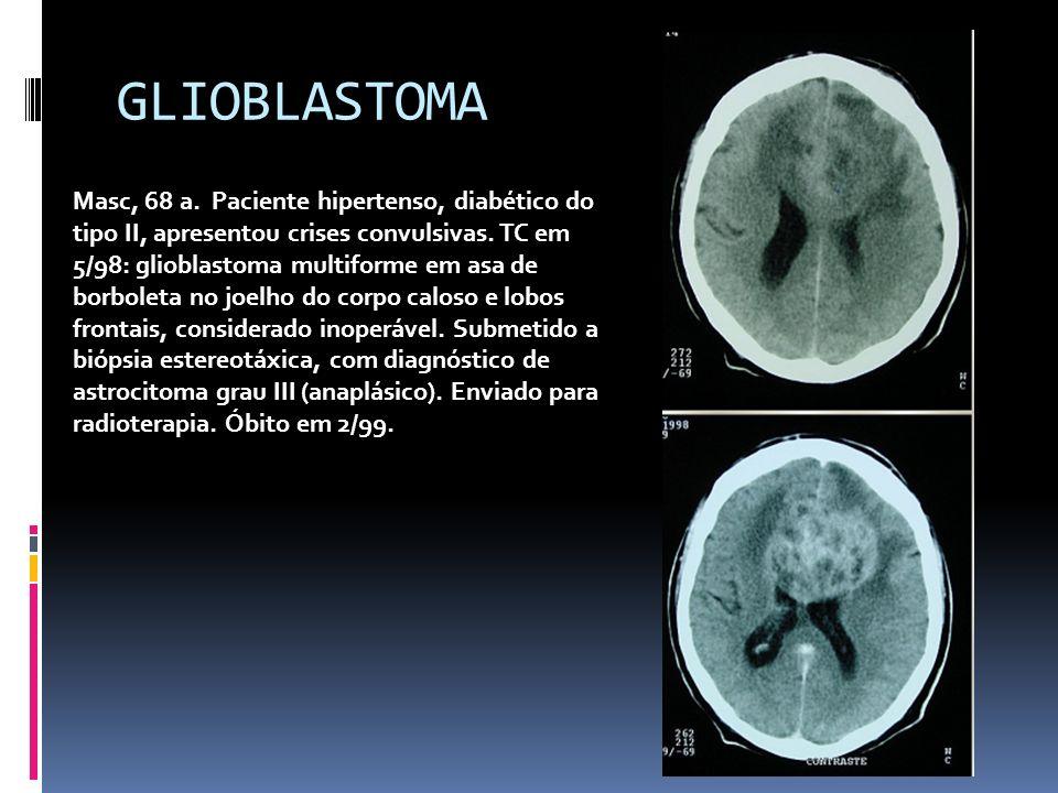 GLIOBLASTOMA Masc, 68 a. Paciente hipertenso, diabético do tipo II, apresentou crises convulsivas. TC em 5/98: glioblastoma multiforme em asa de borbo