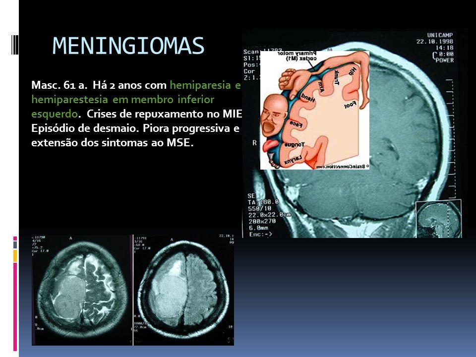 MENINGIOMAS Masc. 61 a. Há 2 anos com hemiparesia e hemiparestesia em membro inferior esquerdo. Crises de repuxamento no MIE. Episódio de desmaio. Pio