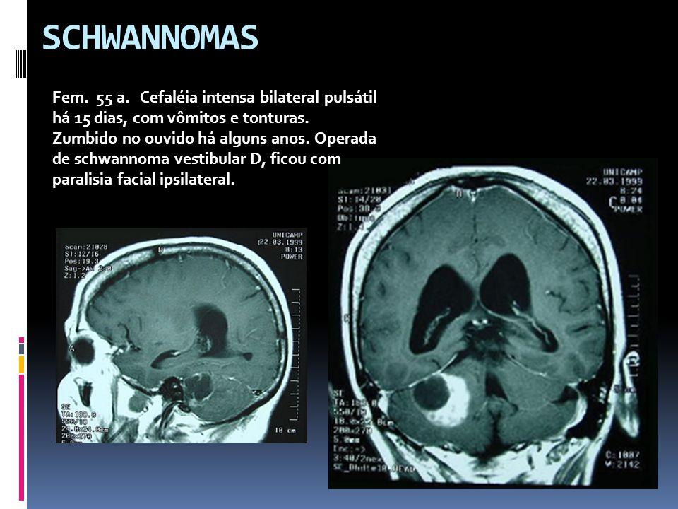 SCHWANNOMAS Fem. 55 a. Cefaléia intensa bilateral pulsátil há 15 dias, com vômitos e tonturas. Zumbido no ouvido há alguns anos. Operada de schwannoma