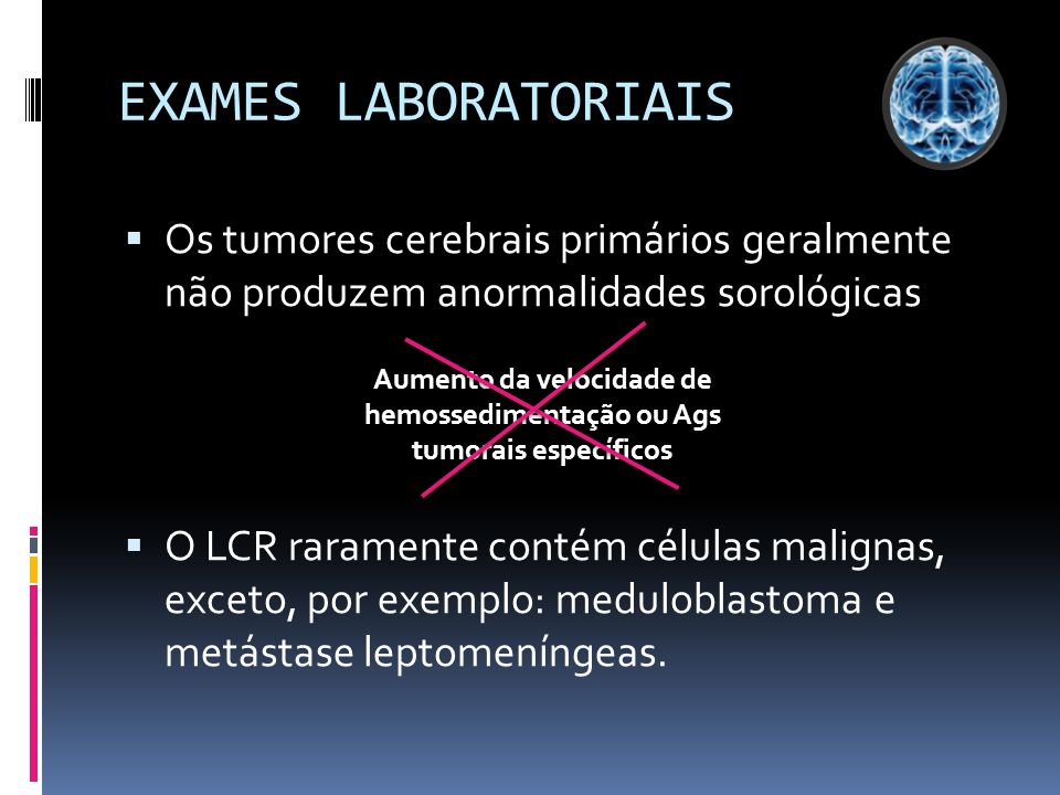 EXAMES LABORATORIAIS Os tumores cerebrais primários geralmente não produzem anormalidades sorológicas O LCR raramente contém células malignas, exceto,