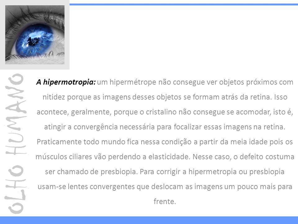 A hipermotropia: um hipermétrope não consegue ver objetos próximos com nitidez porque as imagens desses objetos se formam atrás da retina. Isso aconte