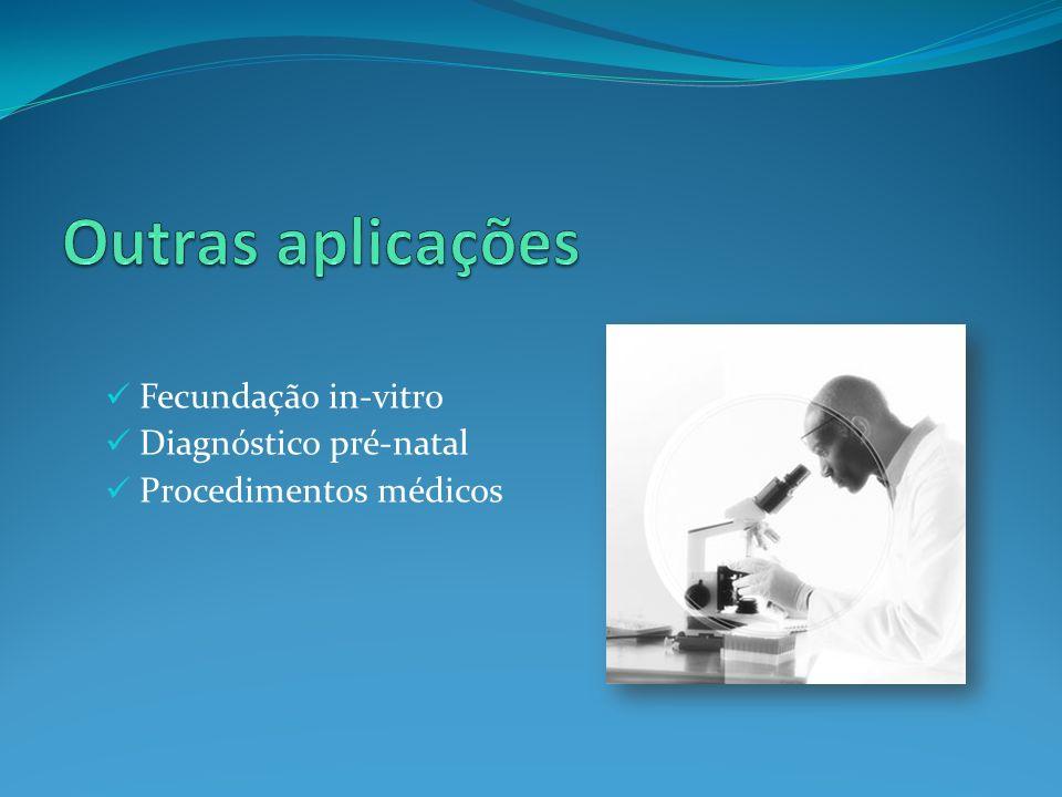 Fecundação in-vitro Diagnóstico pré-natal Procedimentos médicos