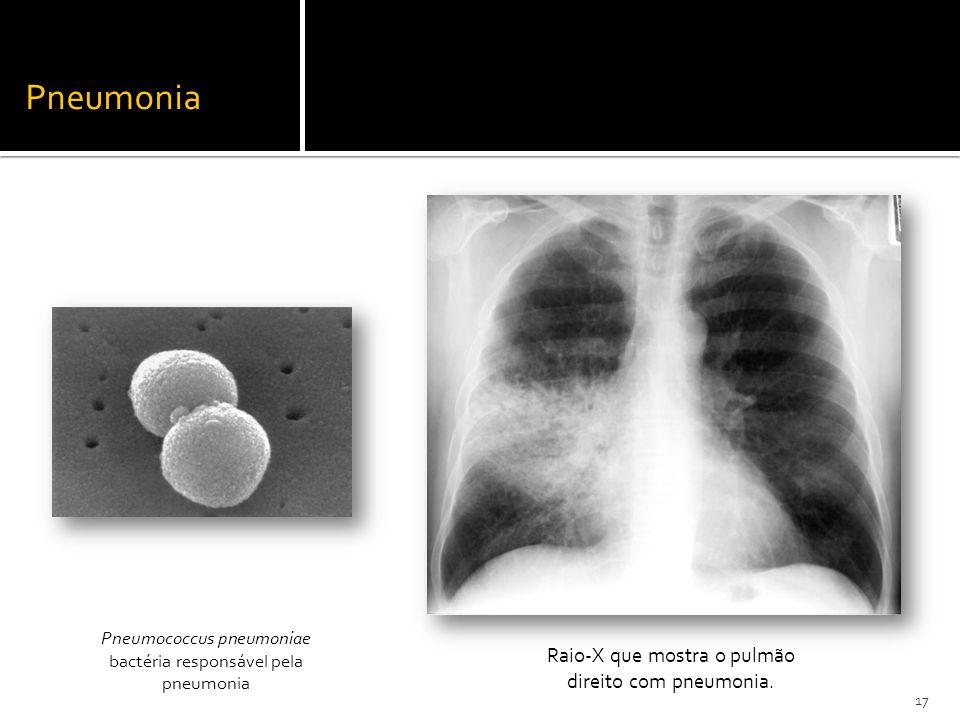 Pneumococcus pneumoniae bactéria responsável pela pneumonia Raio-X que mostra o pulmão direito com pneumonia. Pneumonia 17