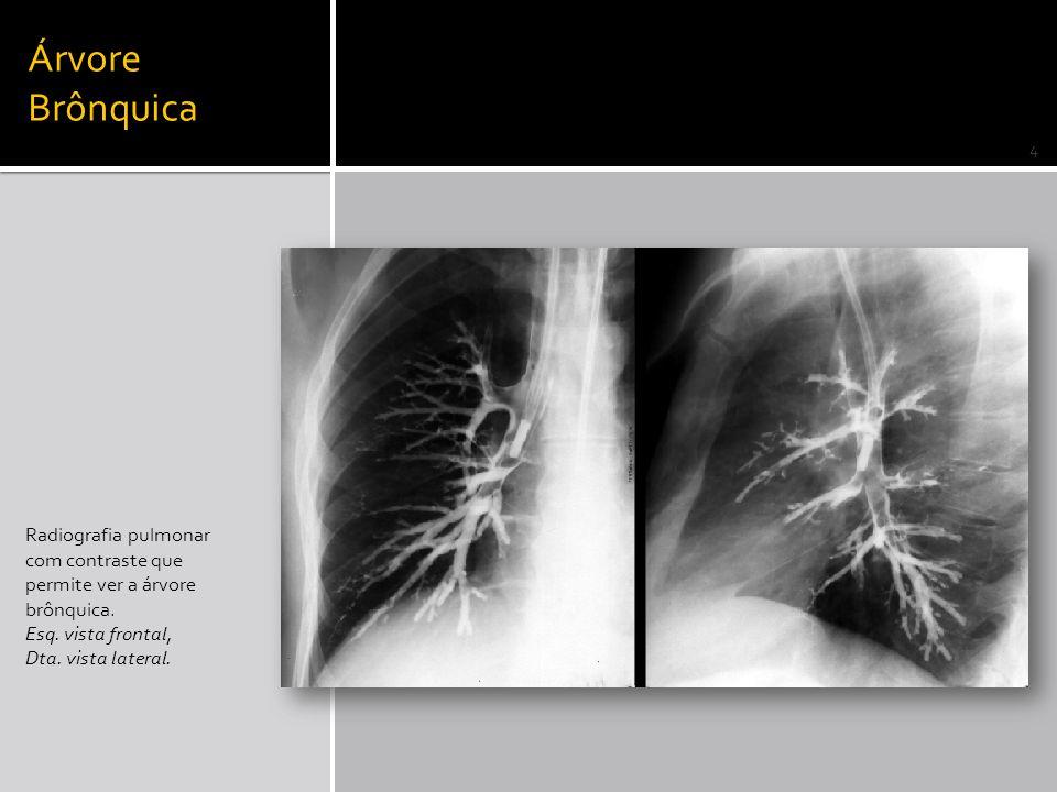 Árvore Brônquica Radiografia pulmonar com contraste que permite ver a árvore brônquica. Esq. vista frontal, Dta. vista lateral. 4