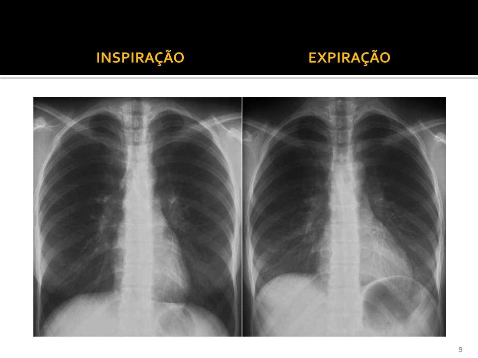 Trocas de gases que ocorrem ao nível dos pulmões.Ocorrem ao nível dos alvéolos pulmonares.