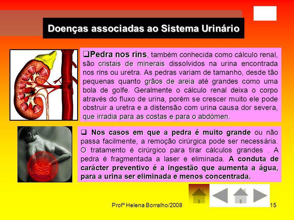 Profª Helena Borralho/200815 Doenças associadas ao Sistema Urinário Pedra nos rins cristais de minerais grãos de areia que irradia para as costas e pa