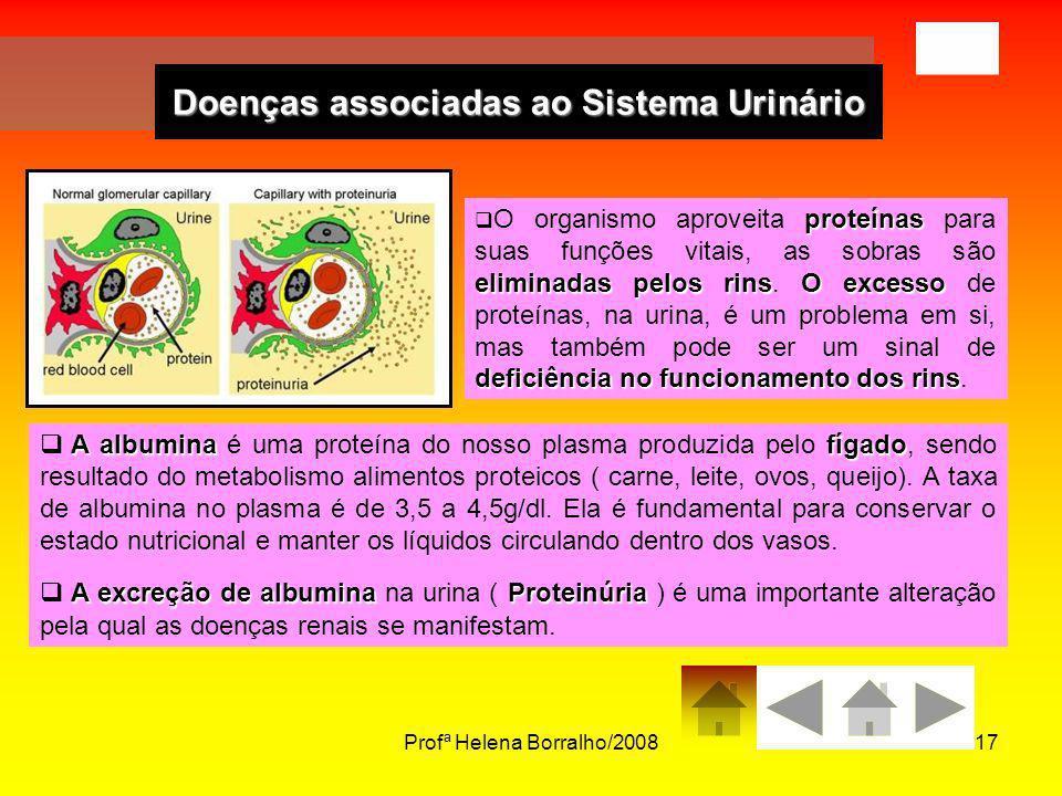 Profª Helena Borralho/200817 Doenças associadas ao Sistema Urinário proteínas eliminadas pelos rinsO excesso deficiência no funcionamento dos rins O o