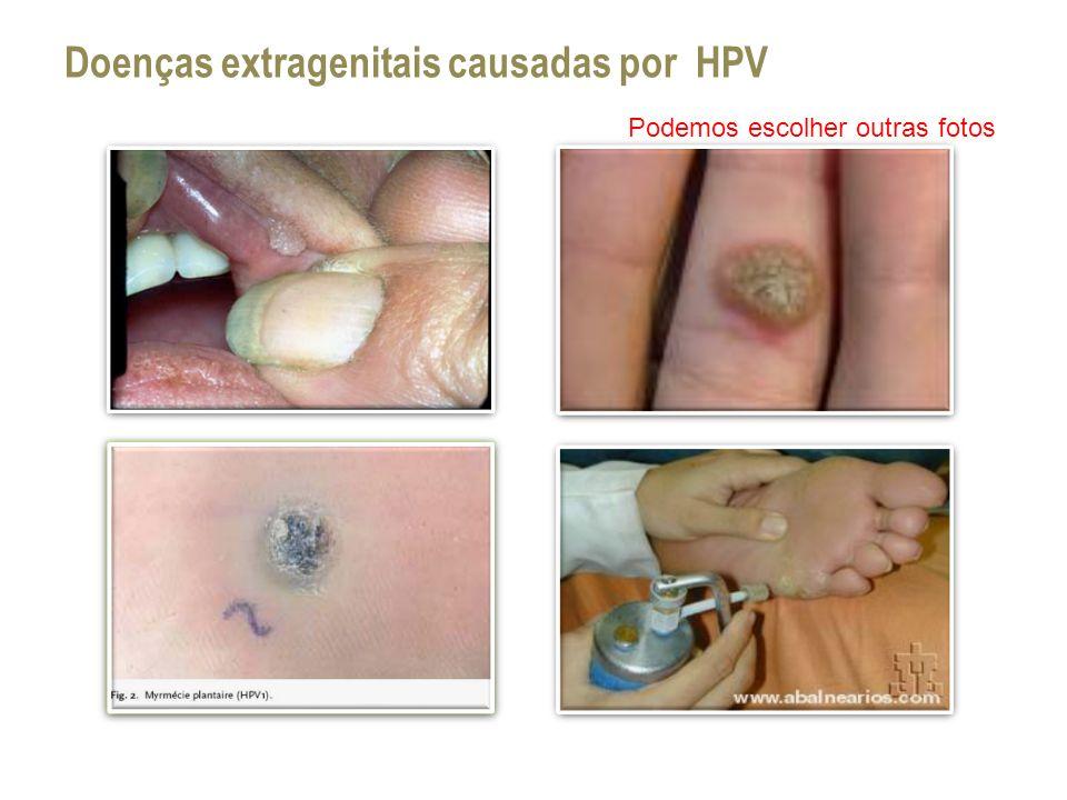 Doenças extragenitais causadas por HPV Podemos escolher outras fotos